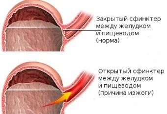 Причиной изжоги является то, что сфинктер, расположенный между желудком и пищеводом находиться в открытом состоянии