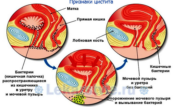 Изображение признаков цистита на анатомическом уровне
