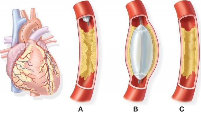 Ангиопластика применяется, как один из эффективных методов лечения болезней сердца
