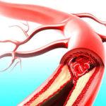 Атеросклероз сосудов нижних конечностей — лечение, основные причины, диагностика и профилактика возможных последствий