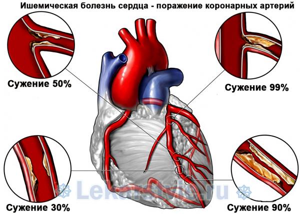 Ишемическая болезнь сердца - поражение коронарных артерий