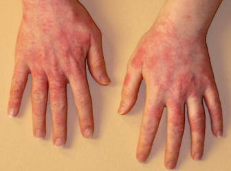 Аллергия холодовая на руках (фото)