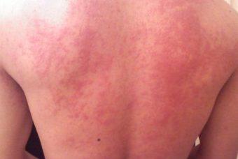Аллергия на алкоголь: симптомы проявления аллергической реакции