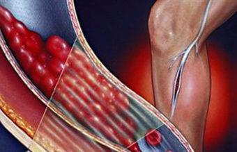 Тромбофлебит глубоких вен нижних конечностей: симптомы и лечение