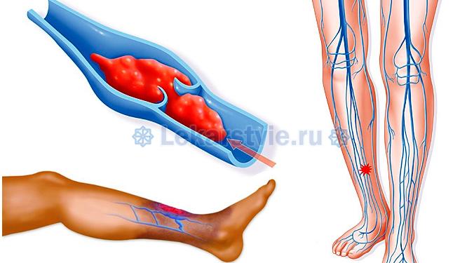 Тромбофлебит характерен появлением следующих симпотомов: может возникать боль, усиливающаяся при сдавливании, сгибании и движении