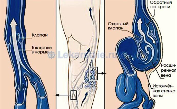Различие здоровой вены и варикозного расширения вены