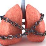 Бронхиальная астма – лечение, симптомы, виды, профилактика и дыхательная гимнастика
