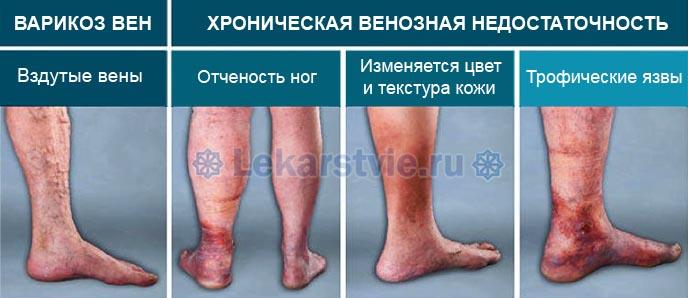 Болят вены на ногах - стадии развития венозных заболеваний ног с характерными симптомами