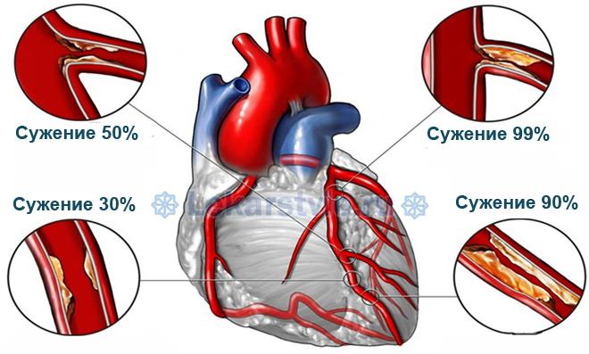 ИБС: что это такое? Ишемической болезнью сердца называется поражение коронарных артерий