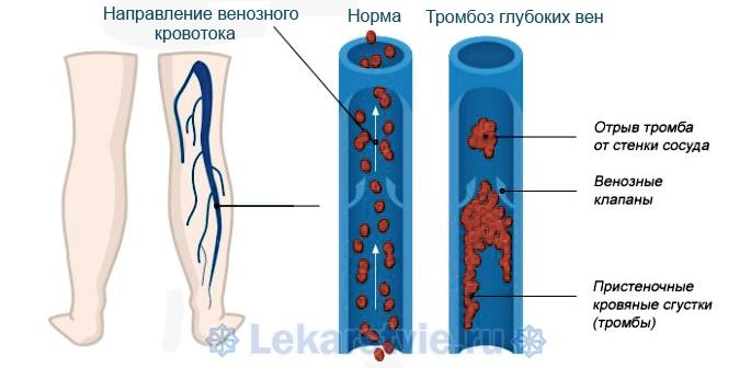 Кардиомагнил от чего помогает: является профилактическим средством против тромбоза глубоких вен и других заболеваний кровообращения