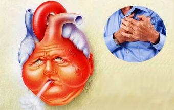 Cердечная недостаточность: симптомы и лечение болезни сердца
