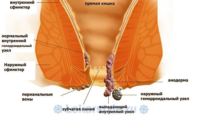 Анатомические структуры прямой кишки и виды геморроидальных узлов