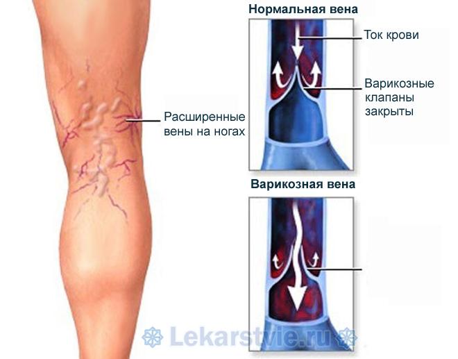 Анатомический механизм и причины варикозного расширения вены