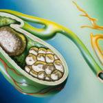 Желчекаменная болезнь — симптомы, лечение без операции, какие продукты можно есть (диета), лечение народными средствами