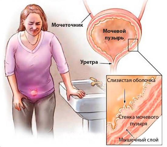Цистит: симптомы характерные для воспаления мочевого пузыря