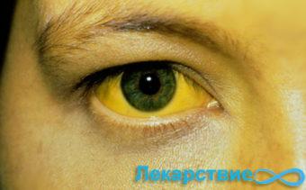 Гепатит А симптомы желтухи