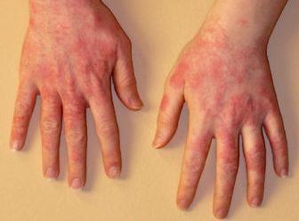 Аллергия на коже: фото, виды, аллергия на холод (симптомы лечение)